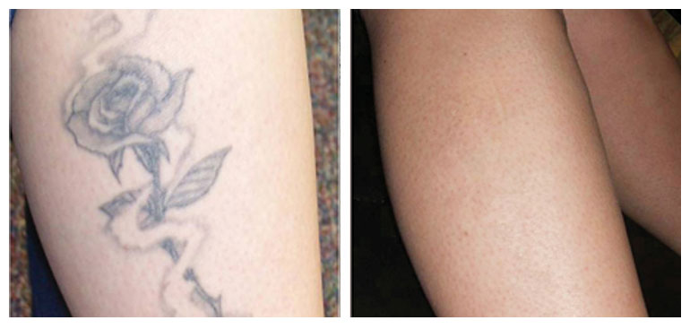 Pictures of before and after tattoo removal inkerase for Laser tattoo removal manhattan